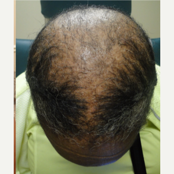 55-64 year old woman treated with PRP for Hair Loss after 3581837