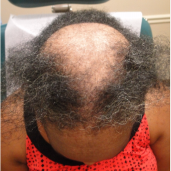 55-64 year old woman treated with PRP for Hair Loss before 3581837