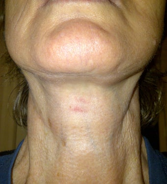 Lower Face Lift allows for great improvement for the neck as well after 1040221