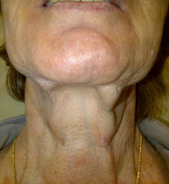 Lower Face Lift allows for great improvement for the neck as well before 1040221