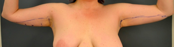 35-44 year old woman treated with Vaser Liposuction