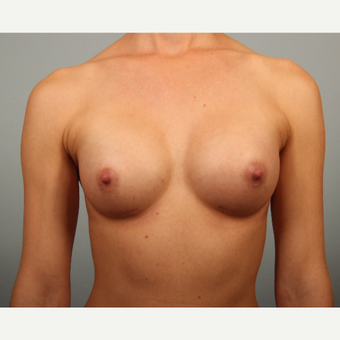 25-34 year old woman with mammary hypoplasia; fit with very little body fat after 3418698