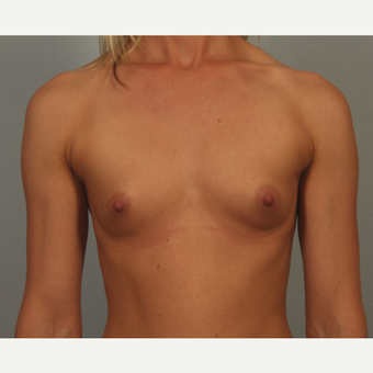 25-34 year old woman with mammary hypoplasia; fit with very little body fat before 3418698