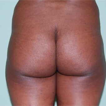 35-44 year old woman treated with Brazilian Butt Lift before 2205049