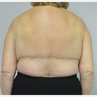 65-74 year old woman treated with Upper Body Lift/ Bra Line Back Lift after 3850409
