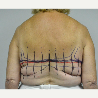 65-74 year old woman treated with Upper Body Lift/ Bra Line Back Lift before 3850409
