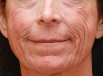Fraxel Repair for Wrinkles and Tightening before 1358713