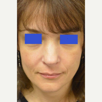 45-54 year old woman treated with a wide nose treated with a Rhinoplasty before 3482835