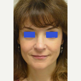 45-54 year old woman treated with a wide nose treated with a Rhinoplasty after 3482835