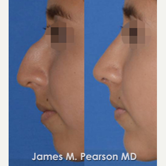 18-24 year old woman treated with Rhinoplasty before 3815223