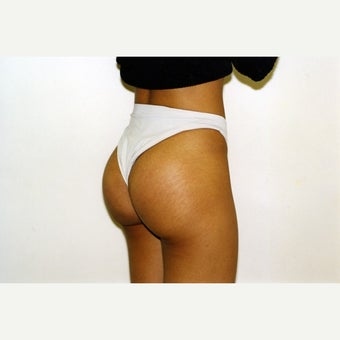 buttock implant after 2026499