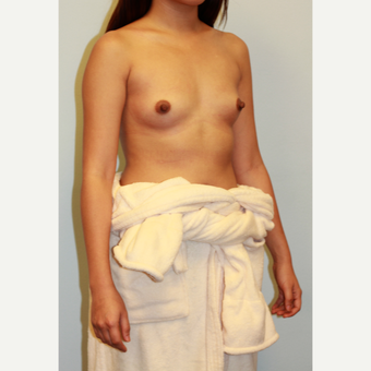 18-24 year old woman treated with Breast Implants before 3412880