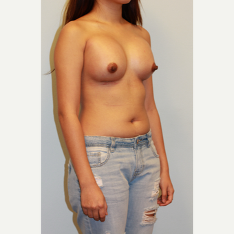 18-24 year old woman treated with Breast Implants after 3412880