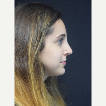 25-34 year old woman treated with Rhinoplasty after 3724367