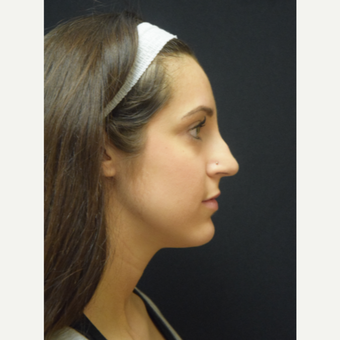 25-34 year old woman treated with Rhinoplasty before 3724367