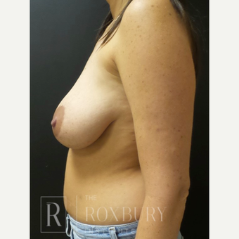 35-44 year old woman treated with Breast Lift before 3844338