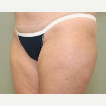 45-54 year old woman treated with CoolSculpting after 2090782