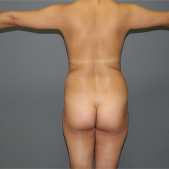 25-34 year old woman treated with Brazilian Butt Lift before 3266357