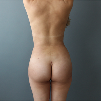 25-34 year old woman treated with Brazilian Butt Lift after 3266357