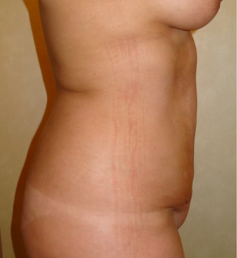 35-44 year old woman treated with Liposculpture after 3749255