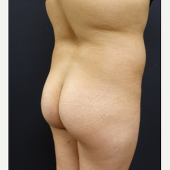 18-24 year old woman treated with 548cc Butt Implants and 400cc of Fat Transfer before 2857656