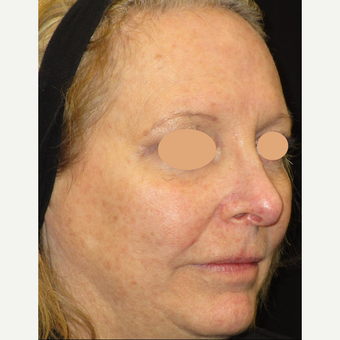 55-64 year old woman treated with Laser Treatment after 3122433