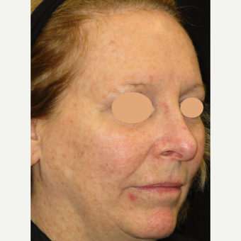 55-64 year old woman treated with Laser Treatment before 3122433
