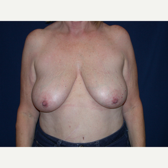 55-64 year old woman treated with Breast Lift before 3564604