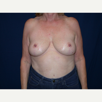55-64 year old woman treated with Breast Lift after 3564604