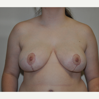 breast reduction under 18 after 3617129
