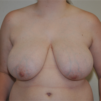 breast reduction under 18 before 3617129