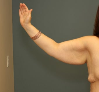 25-34 year old woman treated with Arm Lift before 3630255
