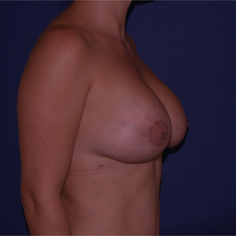 35-44 year old woman treated with Breast Lift with Implants after 3652640