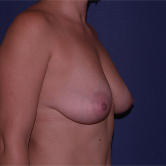 35-44 year old woman treated with Breast Lift with Implants before 3652640