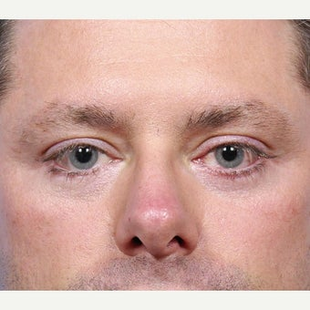 35-44 year old man treated with Eyelid Surgery after 2173339