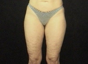 Thighplasty/Body Lift before 1092857