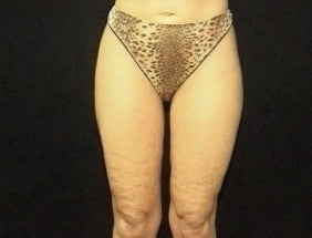 Thighplasty/Body Lift after 1092857