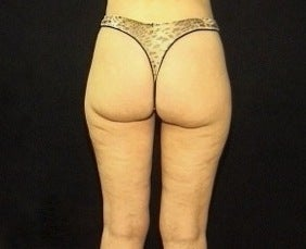 Thighplasty/Body Lift 1092857