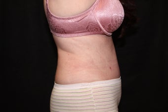 Laser Liposuction - Flanks after 1058497