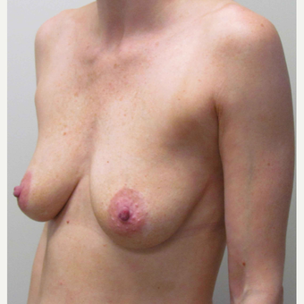 Breast Augmentation for this 34 Year Old Woman before 3005468