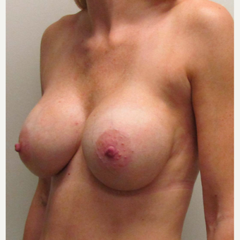 Breast Augmentation for this 34 Year Old Woman after 3005468