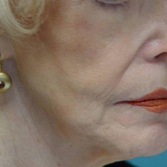 75 and up year old woman treated with Cheek Augmentation before 1581283