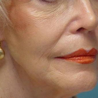 75 and up year old woman treated with Cheek Augmentation after 1581283