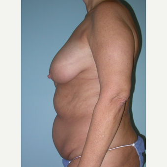 55-64 year old woman treated with Mommy Makeover before 3375441