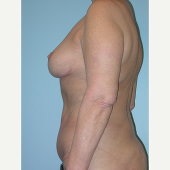 55-64 year old woman treated with Mommy Makeover after 3375441
