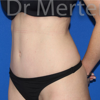 Tummy Tuck after 3599503