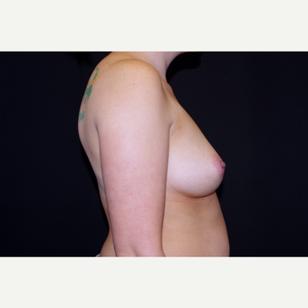 25-34 year old woman treated with Breast Implants before 3741764
