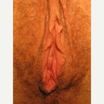 49 year old Vaginoplasty before 1553503