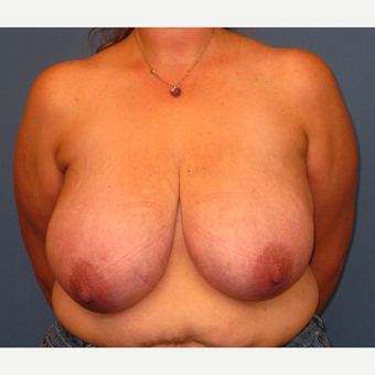 35-44 year old woman treated with Breast Reduction before 3507560