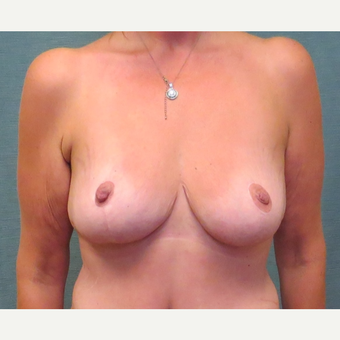 35-44 year old woman treated with Breast Reduction after 3507560